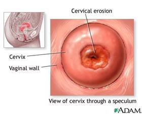 cervical-erosion